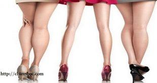 Phụ nữ có bắp chân to có tướng tốt CẢ ĐỜI HƯỞNG PHÚC