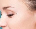 Nốt ruồi khắc phu